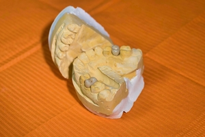 Take a look Dental Implants 40