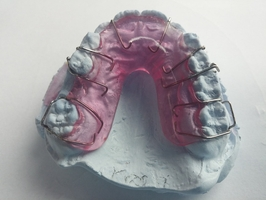See more about Invisalign 23
