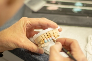 See more about Invisalign 9
